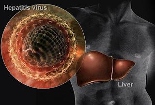 Cara Menyembuhkan Hepatitis B & C, 100% Sembuh