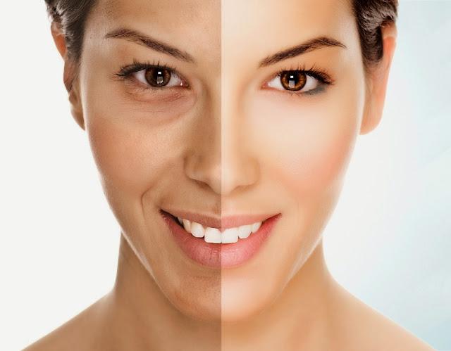 5 Tác dụng của căng da mặt bằng Thermage mà bạn không thể bỏ qua