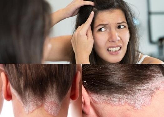 Cara Cepat Menghilangkan Psoriasis Di Kulit Kepala