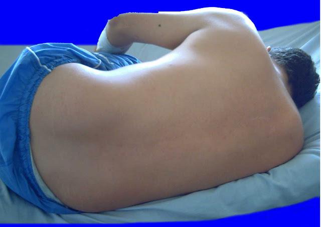 Posición del cuerpo en la punción lumbar
