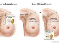 Obat Kanker Payudara Herbal Tanpa Operasi