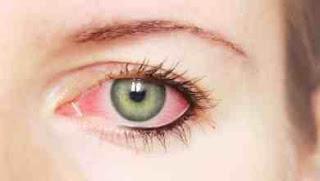 Photo of أمراض العيون وكيفية الوقاية منها