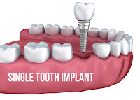http://chennaidentalclinic.in/single-tooth-implants.html