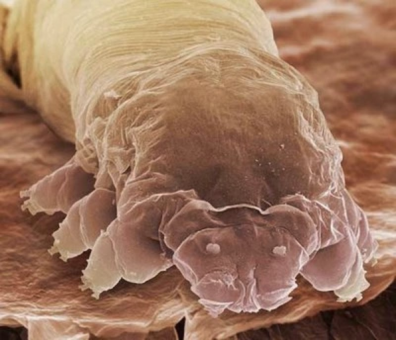 16 Terryfying Images From The Microscope - Eyelash mite