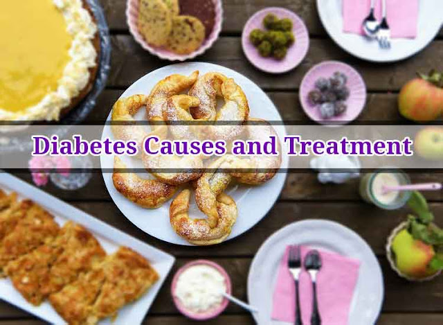 Diabetes Causes and Treatment | Diabetes | Health | How Webs | United States | USA