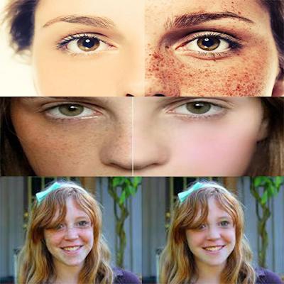 وصفات لإزالة النمش من الوجه نهائيا