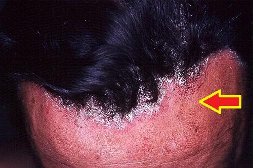 Remedios Caseros Contra la Psoriasis del Cuero Cabelludo