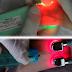 Equipamento auxilia a localização de veias com luz de LED