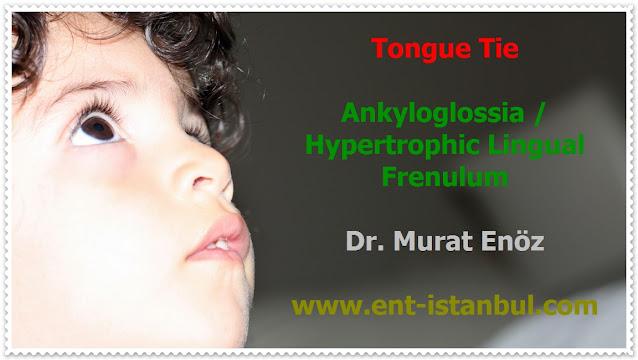 Tongue Tie (Ankyloglossia) Definition - Symptoms of Tongue Tie - Ankyloglossia Related Health Problems - Diagnosis of Tongue Tie - Treatment of Tongue Tie - Tongue Tie Surgery - Frenectomy - Frenulectomy - Frenotomy - Frenuloplasty - Post-operative Exercises for Tongue Tie Surgery - Post-Operative Instructions for Tongue Tie Surgery - Bloodless Tongue Tie Operation