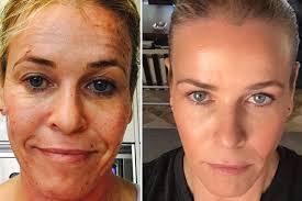 Restore skin freshness using laser