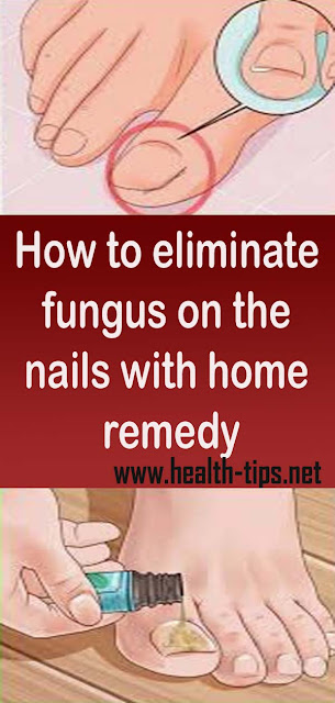 How to eliminate fungus on the nails with home remedy#NATURALREMEDIES