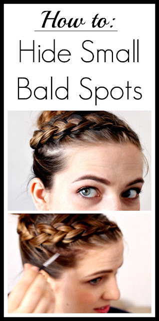 Super easy way to hide those awkward bald patches!