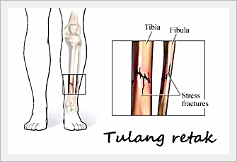 Image result for tulang retak