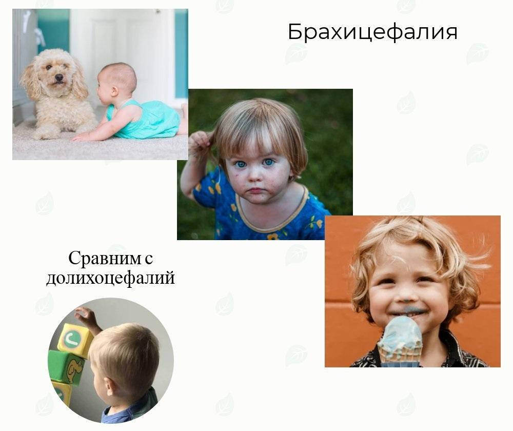 брахицефалия у новорожденных фото для сравнения с долихоцефалией