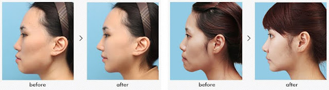 Does It Have To Be Korea Two Jaw Surgery For Protruded Mouth Correction?