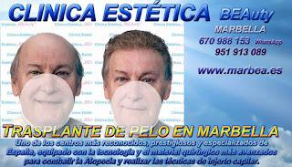 injertos capilar MARBELLA Clínica Estética  implante pelo para mujeres  o hombres o Marbella y en Málaga: Te proponemos la alta calidad de servicios con los mejores