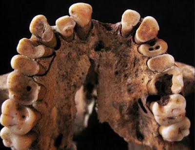 حفريات تافوغالت : أقدم أمراض الأسنان وجدت عند أسلاف الأمازيغ وهي مرتبطة بنمط تغذيتهم المتوارث