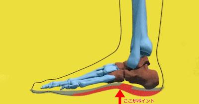 インソールで足裏アーチの機能を助ける。