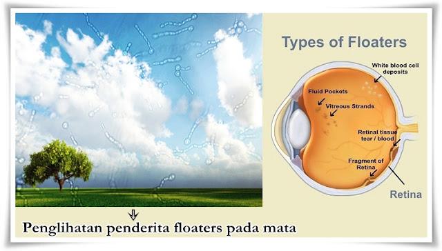 Cara Menyembuhkan Floaters Pada Mata