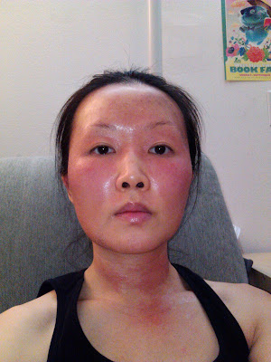 facial edema burning eyes