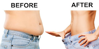 http://www.liposuctiontummytuck.in/what-is-liposuction.html