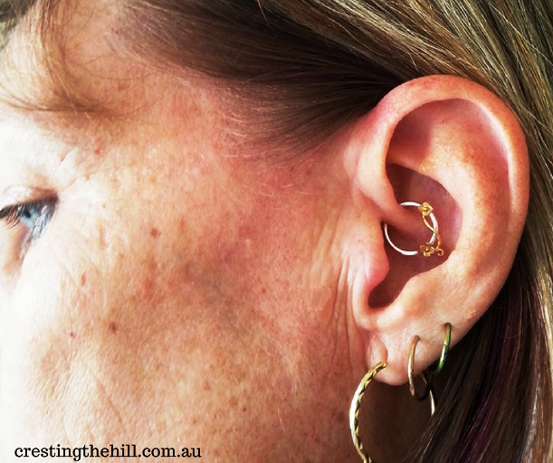 my daith piercing update - 12 months post-piercing