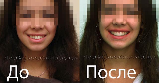 Улыбка пациента до и после лечения брекетами.