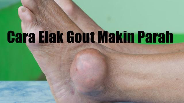 shaklee untuk elak gout