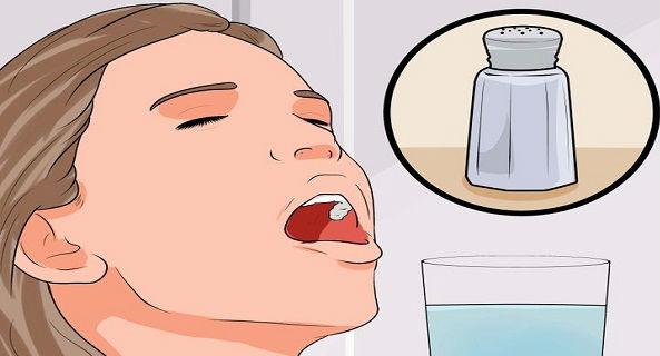 Cara Alami Sembuhkan Sakit Gigi
