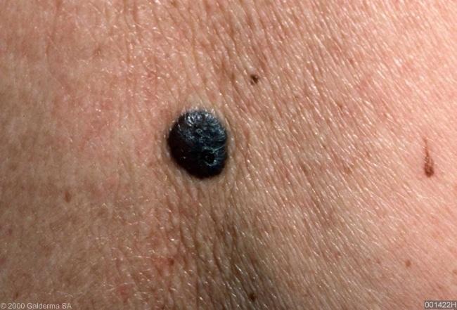 शरीर पर काले तिल उभरना क्या मेलानोमा के लक्षण है