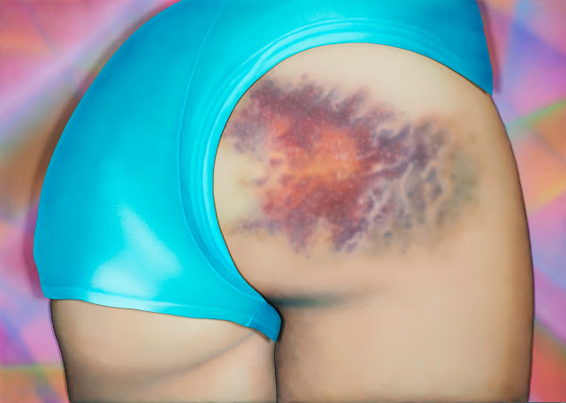 I Got a Really Beautiful Bruise on My Bum, Do You Want To See a Pic? It Has 12 Colours And Is the Size of My Head! - Riikka Hyvönen - Atomlabor Blog