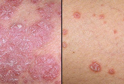 obat menghilangkan jamur kulit yang membandel yang sudah parah