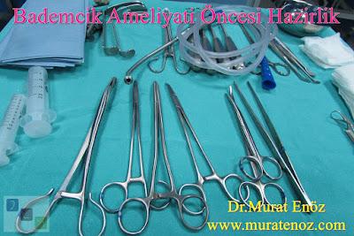 Bademcik Ameliyatı Öncesi Hazırlık