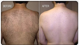 Different after Hair Removal was Processed