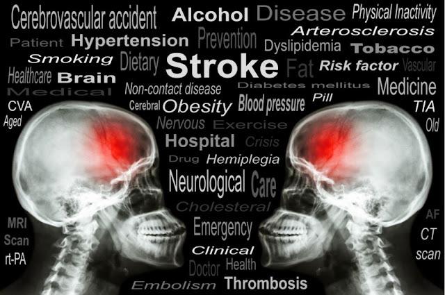 Laporan Pendahuluan Askep Stroke atau Cerebro Vascular Accident (CVA)