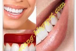 Cara Memutihkan Gigi Secara Alami Dan Cepat Contoh Kata Dp Wa