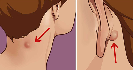 Ayurvedic Treatment of Sebaceous Cyst, epidermoid cyst