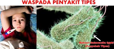 Penyebab Demam Typhoid Tidak Kunjung Sembuh
