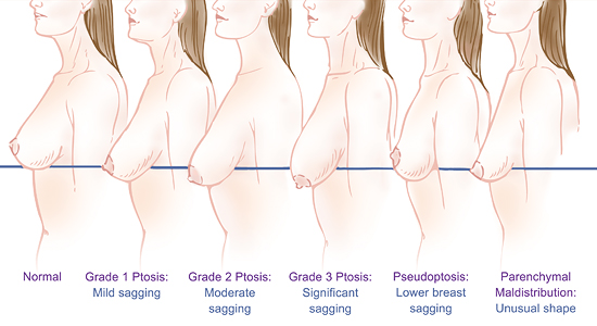 Postpartum breast augmentation