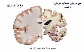 أعراض مرض الزهايمر