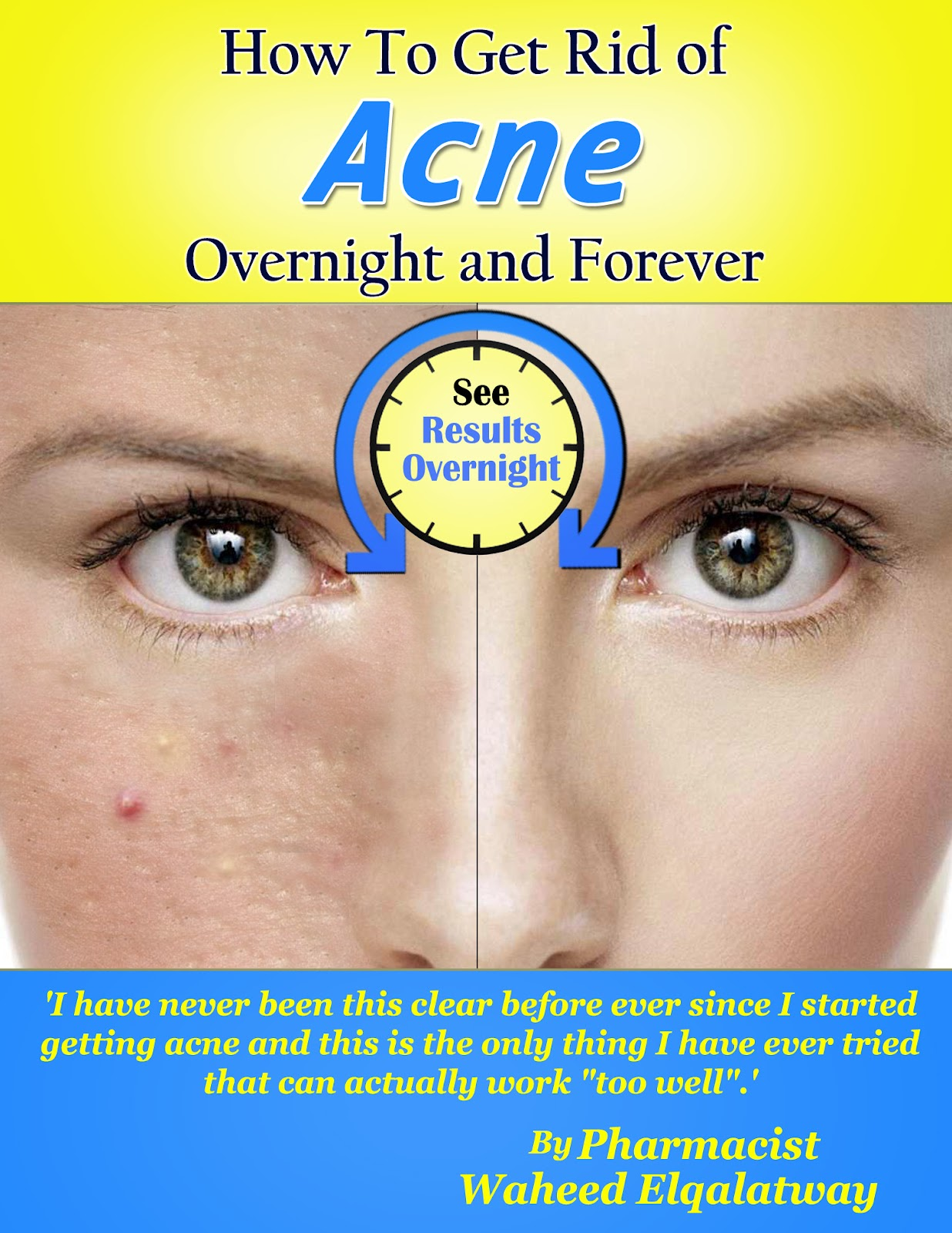 Get Rid Of Acne Overnight And Forever: April 2012