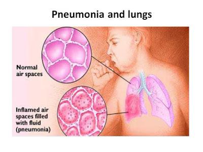 rawatan paru-paru berair