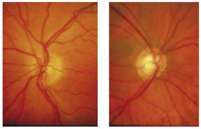 Optic disc yang normal                           Optic disc abnormal pada                     (C/D ratio 0.2)                                      glaukoma (C/D ratio 0.7)