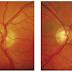 Glaukoma Kronik Mata