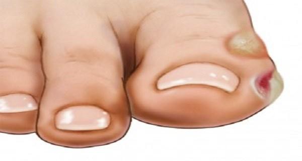 kaki melepuh karena diabetes