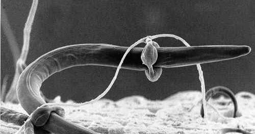 a gömbféreg szerkezeti jellemzője