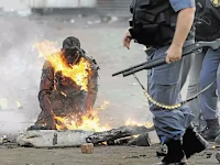 Subhanallah, Pria Ini Tetap Shalat Walau Dalam Kondisi Hangus Terbakar