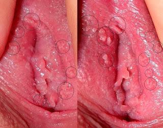 kutil kelamin didalam vagina