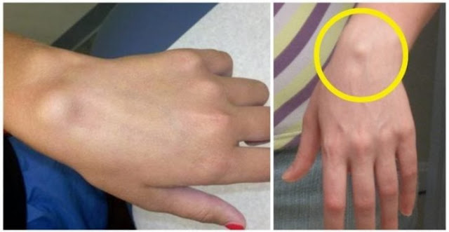 That's Why Some People Have This Bump On Their Wrist