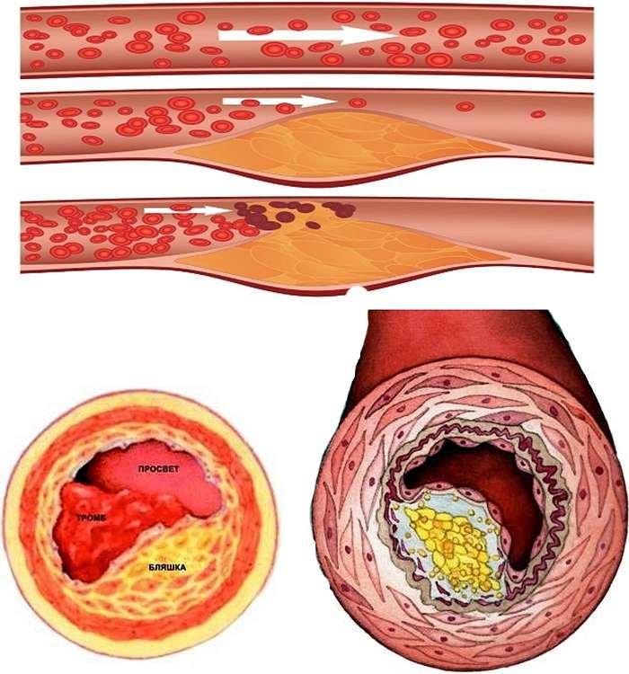 Семя льна для снижения уровня холестерина в крови